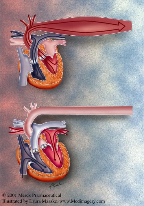 Systole & Diastole