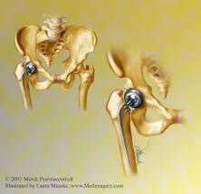 Pelvic Hip Replacement