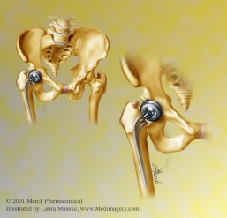Pelvic Hip Replacement