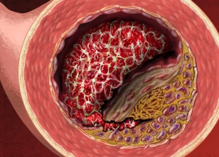 Atherosclerotic Plaque