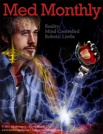 Robotic Limb